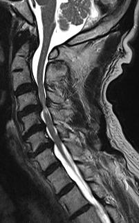 症 根 頚椎 症 性 神経